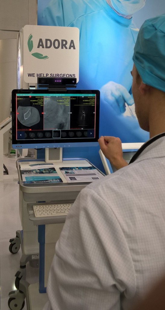 Hand gesture based image navigation during surgery